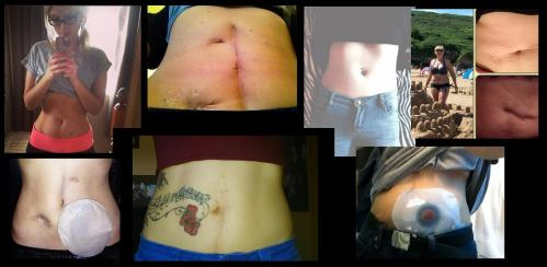 #GetYourBellyOut for Crohns and Colitis!